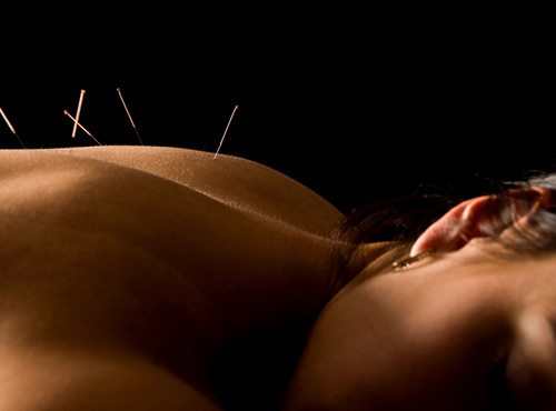 acupuncture Meher Clinic